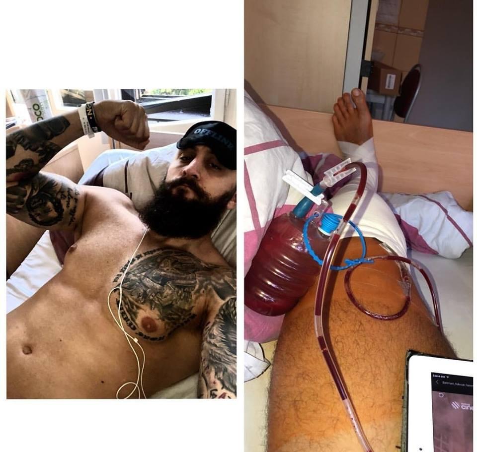 Michal Martínek je po operaci